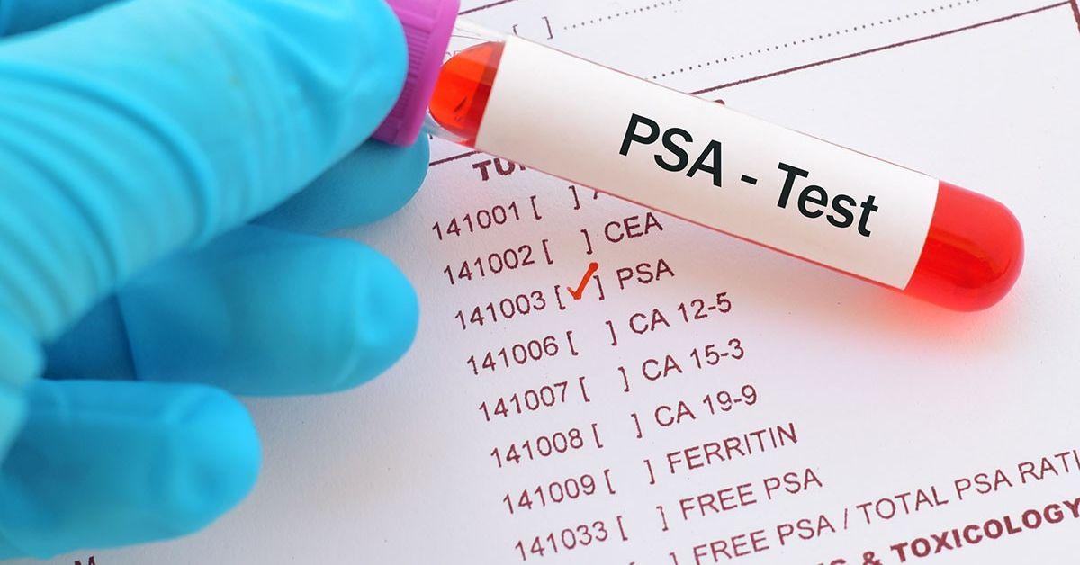 prostata psa test wert